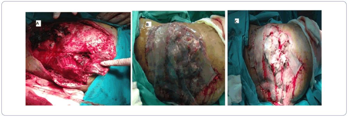 orthopedics-treatment-exposure-2-3-23-g006.png
