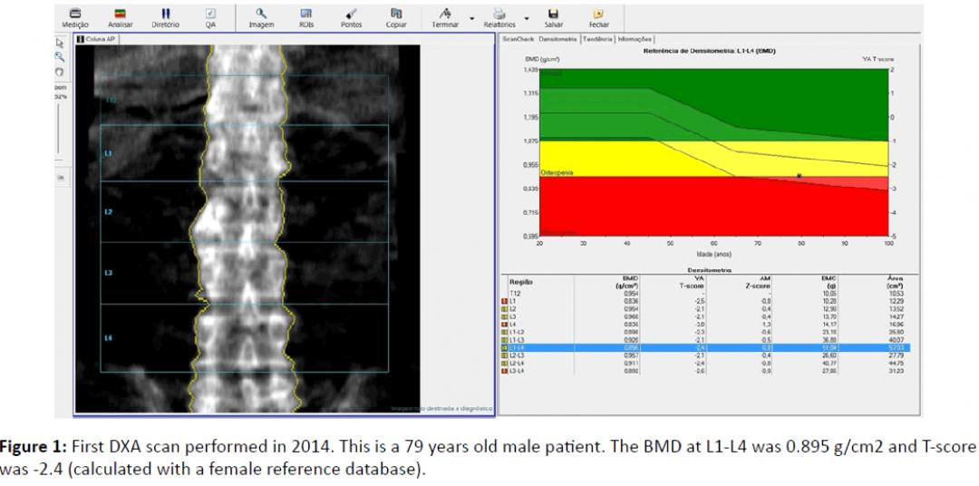 neworthopedics-First-DXA-scan-2-2-20-g001.png