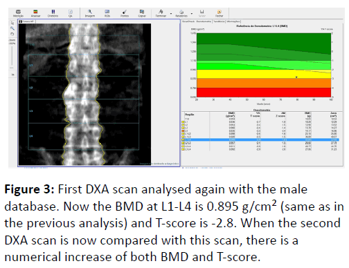 orthopedics-previous-analysis-2-2-20-g003.png