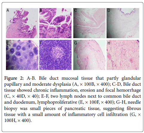 chemotherapy-mucosal-tissue-6-227-g002.png