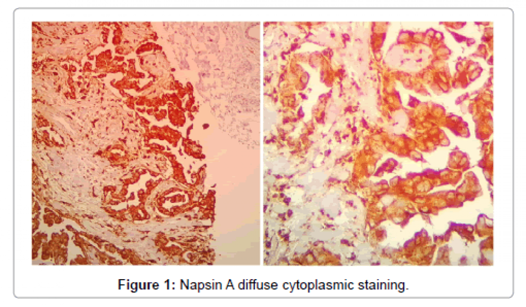 newoncology-cancer-case-reports-Napsin-diffuse-cytoplasmic-staining-3-122-g001.png