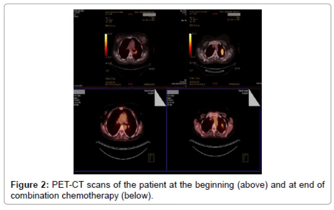 newoncology-cancer-case-reports-PET-CT-scans-patient-3-122-g002.png