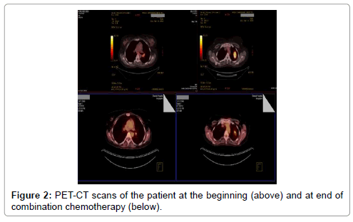 oncology-cancer-case-reports-PET-CT-scans-patient-3-122-g002.png