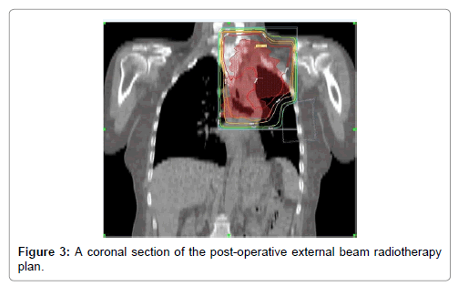 oncology-cancer-case-reports-external-beam-radiotherapy-plan-3-122-g003.png