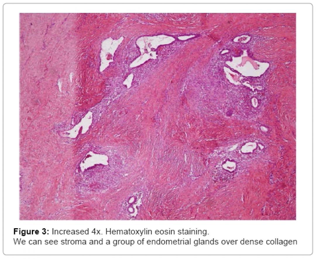 newfertilization-Hematoxylin-eosin-5-198-g003.png