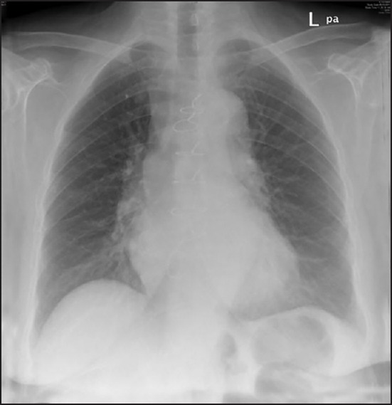 Figure-4.jpg