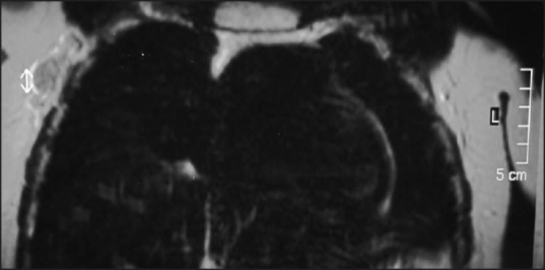 newIJMPO-37-119-g002.jpg