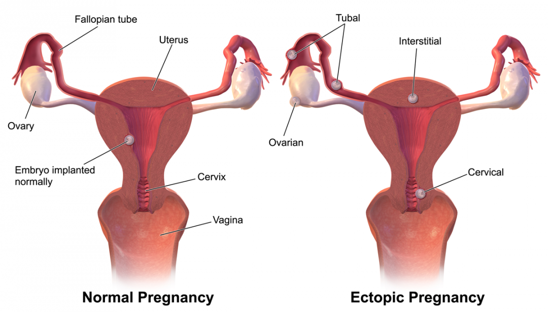 newEctopic_Pregnancy.png
