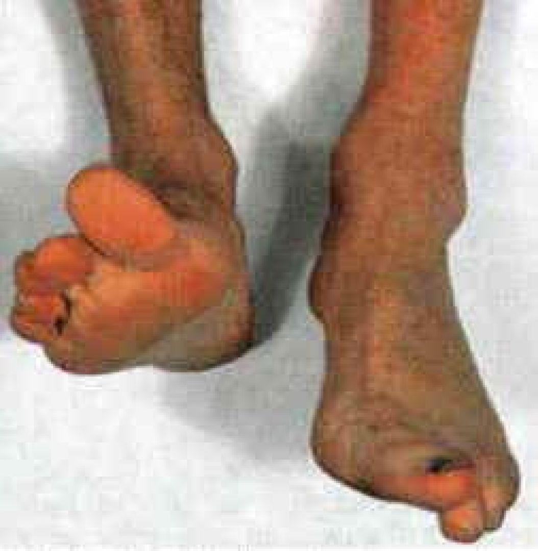 newFoot-Drop-A-Result-of-Common-or-Deep-Fibular-Nerve-Injury..jpg