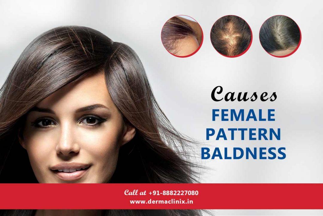 newCauses_Female_Pattern_Baldness1.jpg