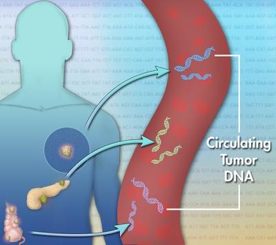 newCirculating-tumor-dna-a.jpg
