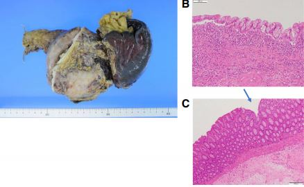 pancreatic+cyst3.JPG