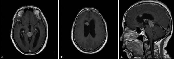 pinea%3B+metastasis.JPG