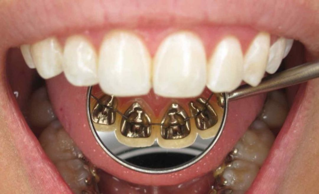 newBest+Orthodontist+in+Gurgaon.jpg