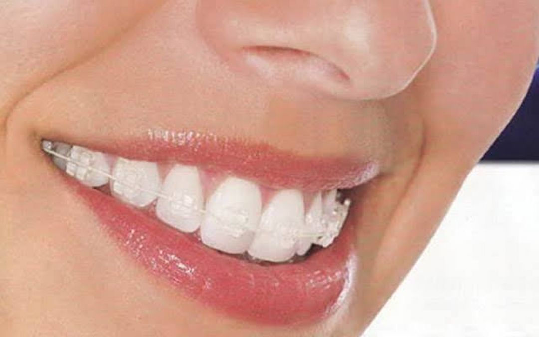 newCosmetic+Dental+Clinic+in+Gurgaon.jpeg