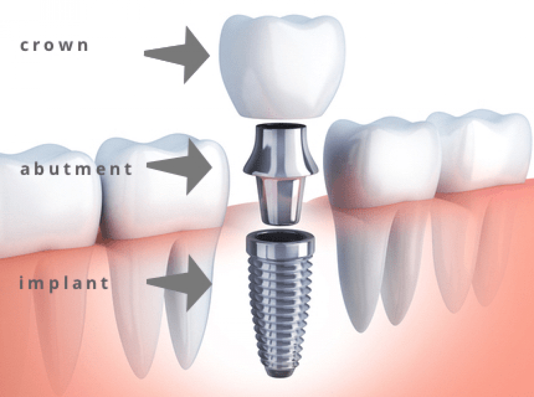 newBest+Dental+Clinic+in+Gurgaon.png