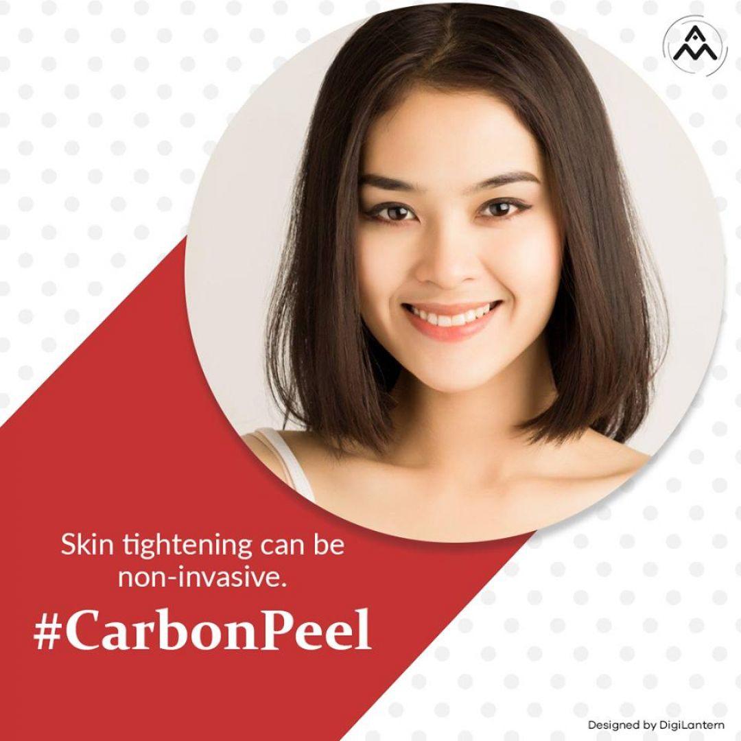 newCarbonPeel.jpg