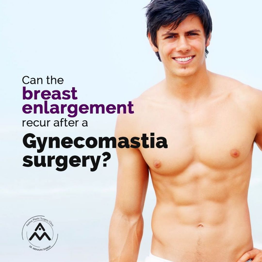 newmale+breast+reduction+surgery+in+delhi.jpg