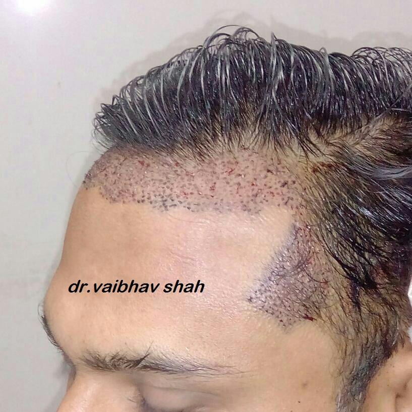 Hair+Transplant+in+Mumbai.jpg