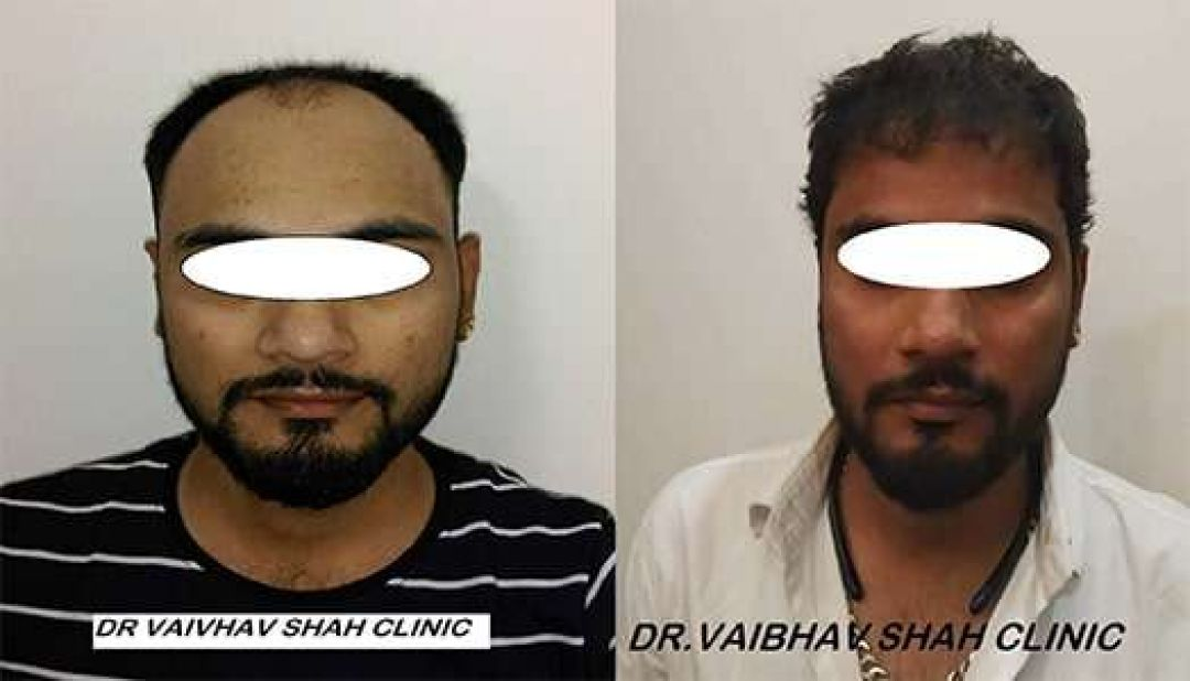 newHAIR-TRANSPLANT-BEFORE-AFTER-04.jpg