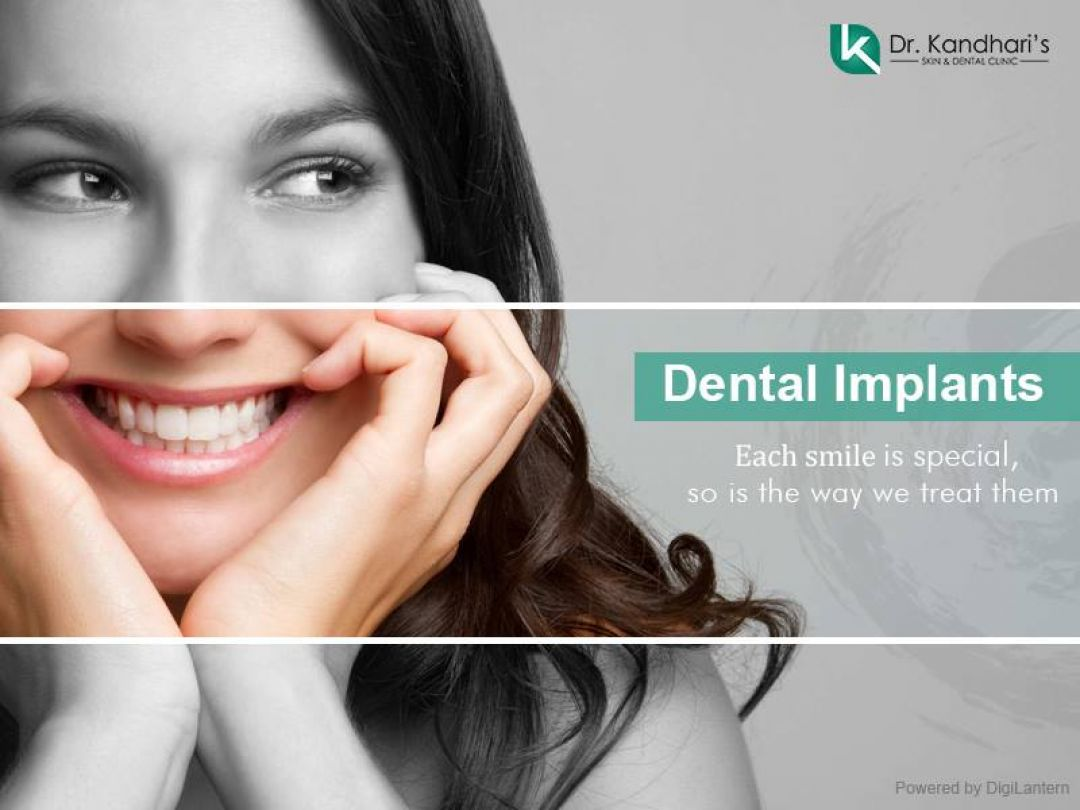 newDental+Implants+in+Delhi.jpg