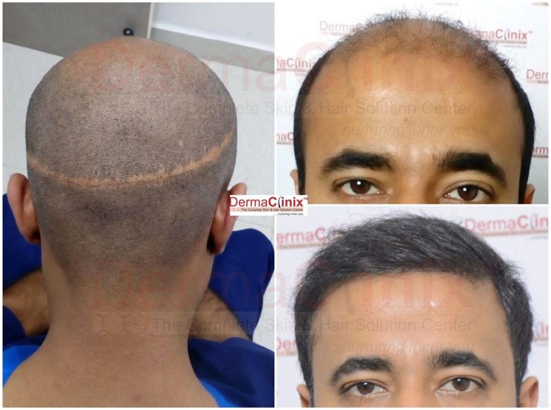 newHair+Transplant+Before+After+Photos.jpg