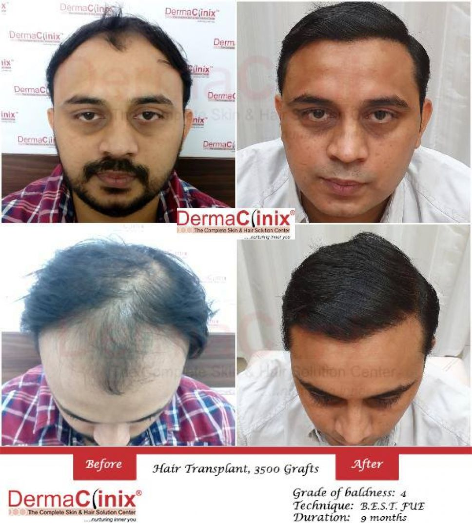 newHair+Transplant+Before+After+Result+in+Delhi.jpg