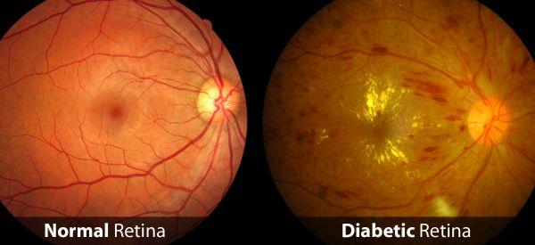 newDiabetic-Retina.jpg