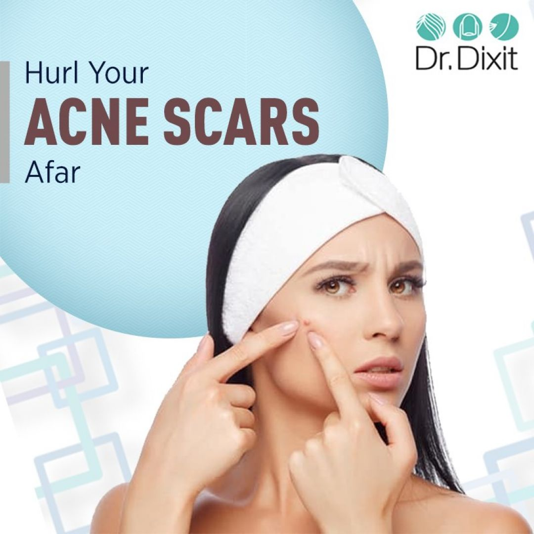 newAcne+Scar+Treatment+in+Bangalore.jpg