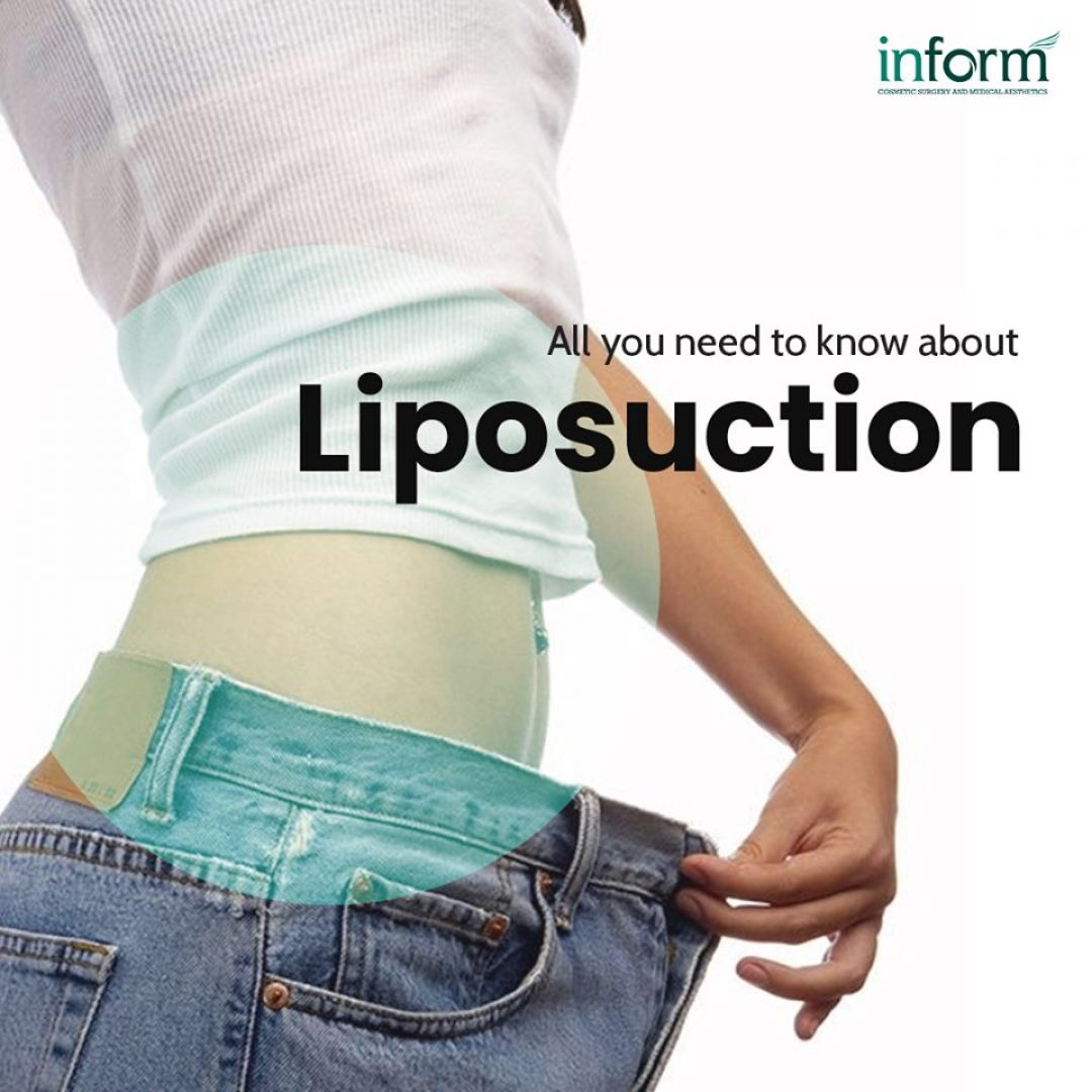 newLiposuction+-+Dr.+Dushyanth+Kalva.jpg