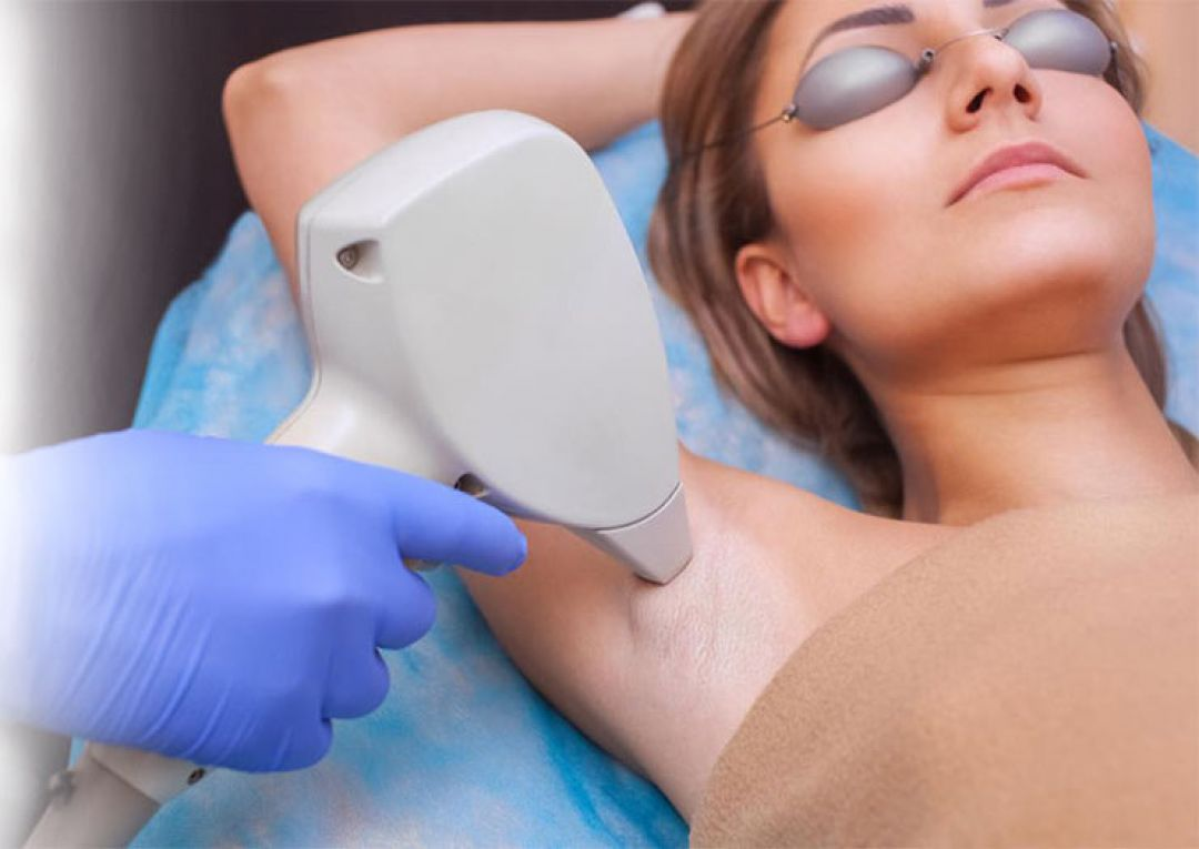 newLaser+Hair+Removal+in+Bangalore+%282%29.jpg