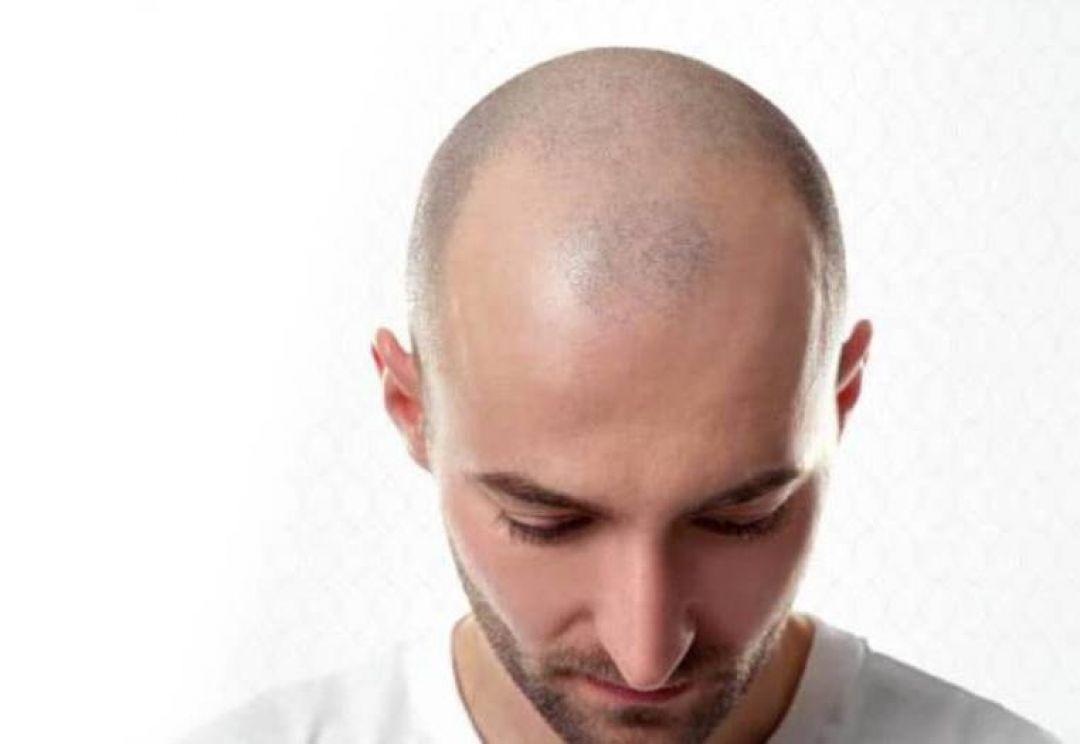 newrobotic+hair+transplant+doctor+in+hyderabad.jpg