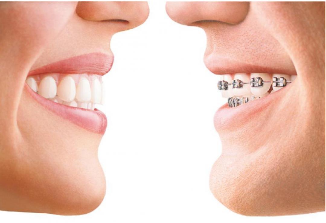 newBest+Orthodontist+In+Delhi.png