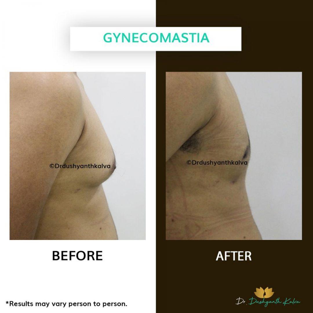 newgynecomastia+Surgery+in+Hyderabad.jpg