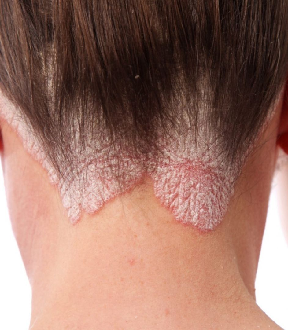 newPsoriasis+treatment+in+Ludhiana+.jpg