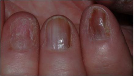 nail+changes+2.JPG