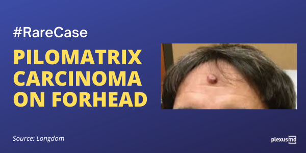 newPilomatrix+carcinoma+on+forhead_+a+rare+case.png