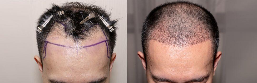 newbest-hair-transplant-clinic.jpg