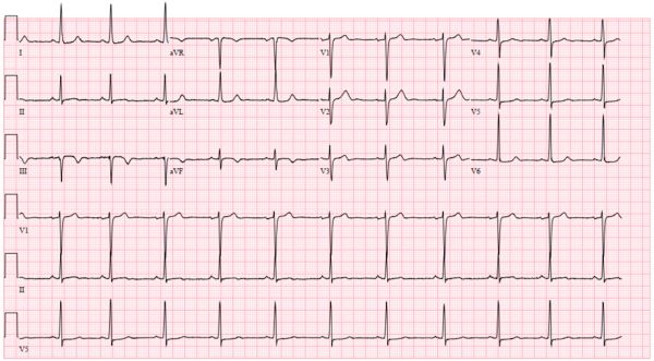 coronary1.jpg