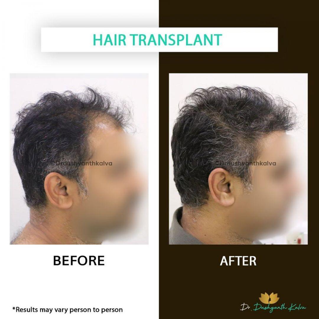 newHair+Transplant+Surgery+in+Hyderabad.jpg