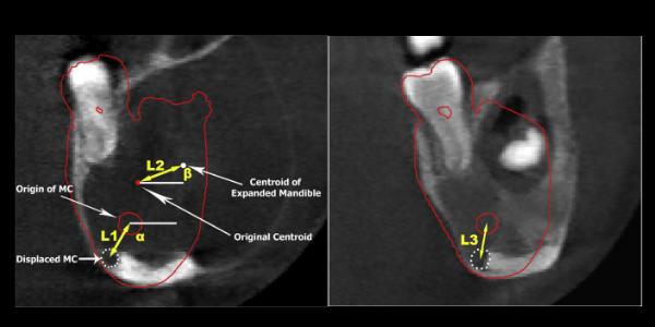 newPilomatrix+carcinoma+on+forhead_+a+rare+case+%2892%29.png
