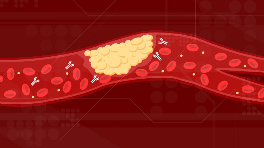 newCOVID_thrombo_inflammation_blood_vessel_with_clot_and_antibodies.jpg
