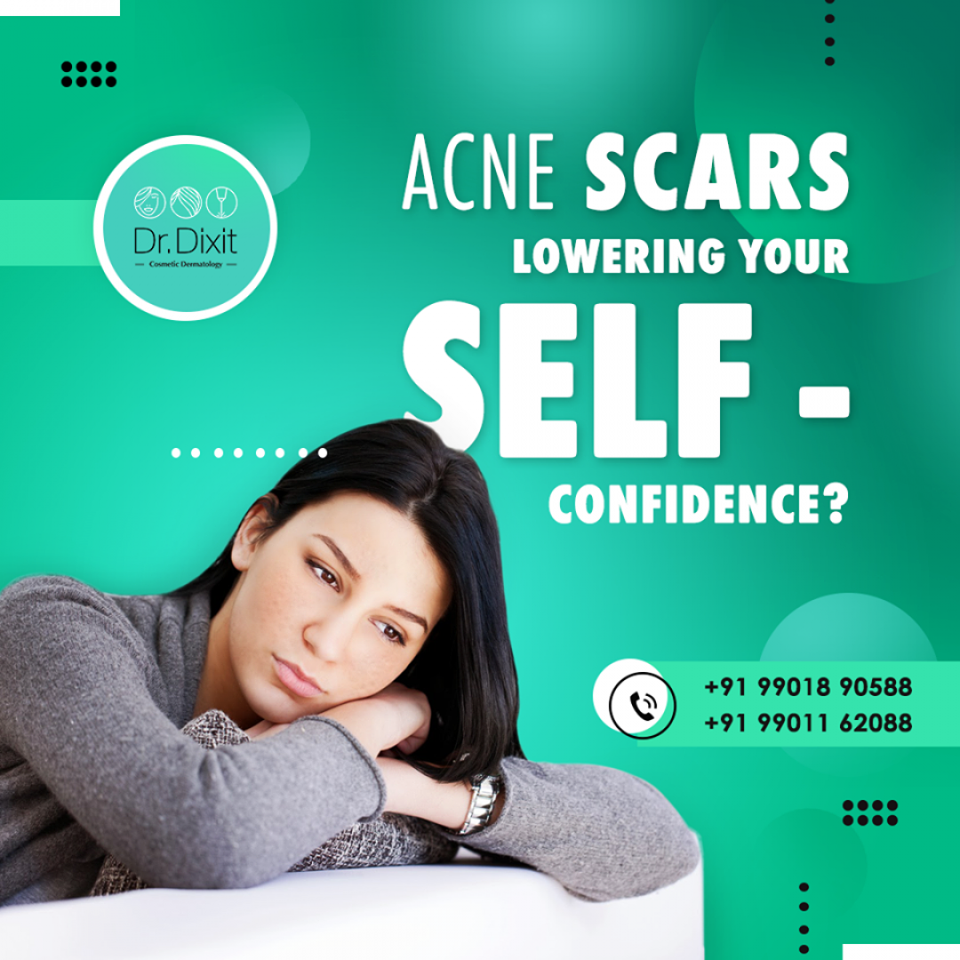 newAcne+Scar+Treatment.png