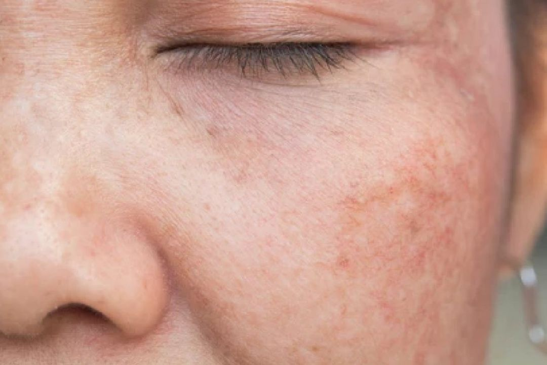 newSkin+Pigmentation+Treatment+in+Delhi.jpg