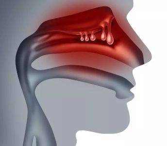 new473+nasal.jpg