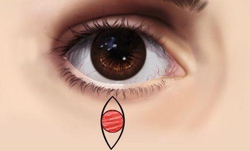 new482+eye.jpg