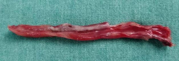 appendix2.JPG