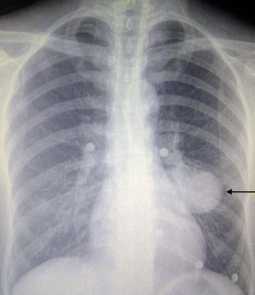 newpneumocytoma.JPG