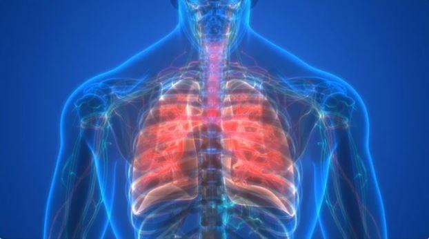 newfibrosis.JPG