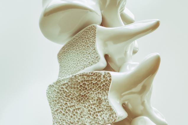 newosteoporosis.JPG